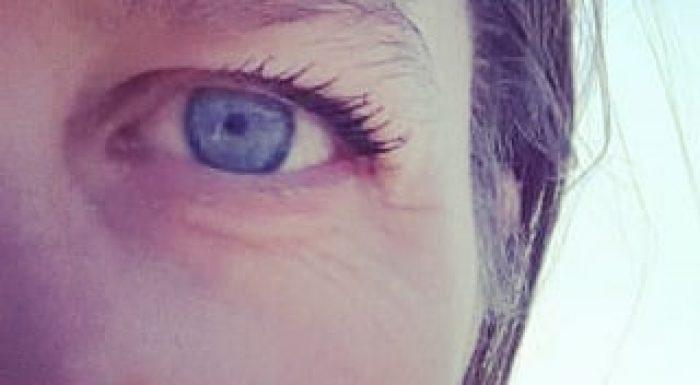Open ogen